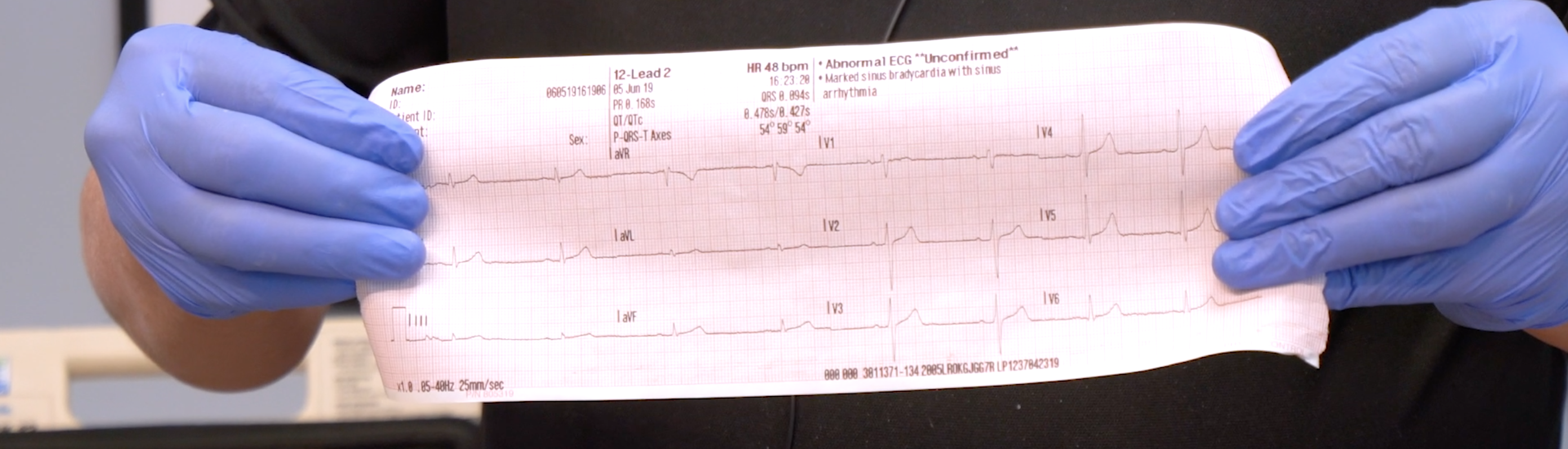 A diagnostic quality EKG from 3 views of the heart